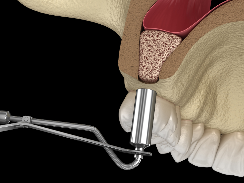 Sinus lift dental implants Hitchin