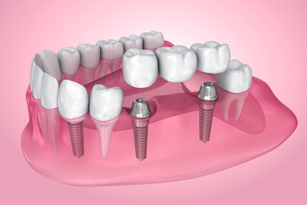dental bridges missing teeth